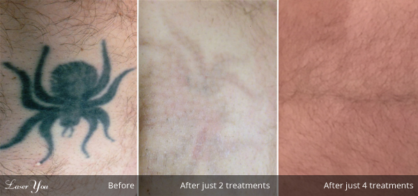 tattoo removal adelaide
